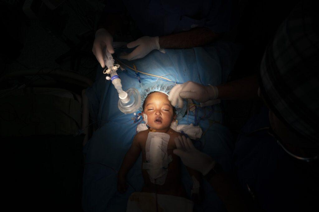 Ενα παιδάκι 1 έτους κατα τη διάρκεια εγχείρησης ανοιχτής καρδιάς, στην Τρίπολι της Λιβύης. Η εγχείρηση κρατηση 5 ώρες και ήταν ενα απο τα 1000 παιδιά που περιθάλπτηκε απο το γιατρό William Novick και την ομάδα του απο τότε που ήρθε στην Λιβύη το 2011. AP Photo/ Felipe Dana